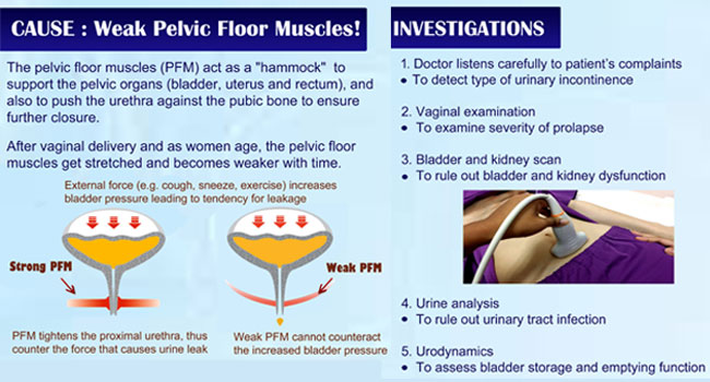 Kegel Exercises Strengthening The Weak Floor Muscles That